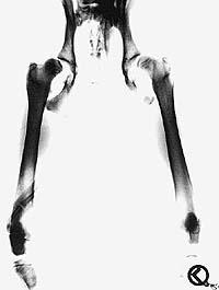 offizielle ocd röntgenaufnahme